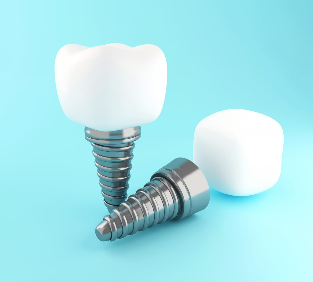 Tooth Implant