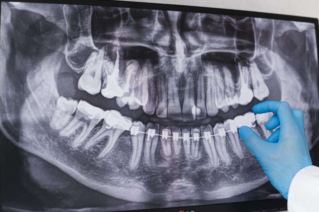 Wisdom Teeth Removal Cost In Mississauga